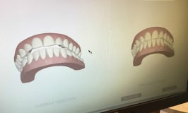 Invisalign: The First 6 Weeks
